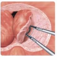 前立腺肥大の手術